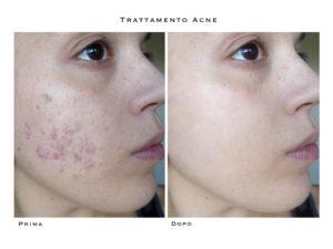 luce pulsata acne