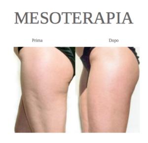 Mesoterapia Cellulite Milano Dott Massimo Cevamassimo Ceva